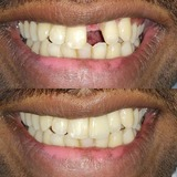 New Album of The Prefect Smile Dental Clinic, Chandigarh
