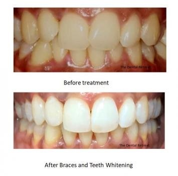 Profile Photos of The Dental Retreat 2/20 Aberdeen Road - Photo 4 of 4
