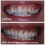 Profile Photos of Smilelign Limited