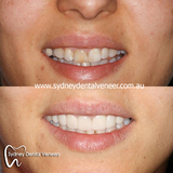 WIP. Pity the existing crowns on the left hand side means I cannot extend them to match the rest of teeth.  This is just some provisionals trial smile.  #smilemakeover #WIP #cosmeticdentist #cosmeticdentistry #dentalveneers