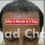 Cosmo Hair transplant Clinic Lahore