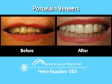 Porcelain Veneers Before and After Austin TX