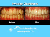 Invisalign Before After Austin TX