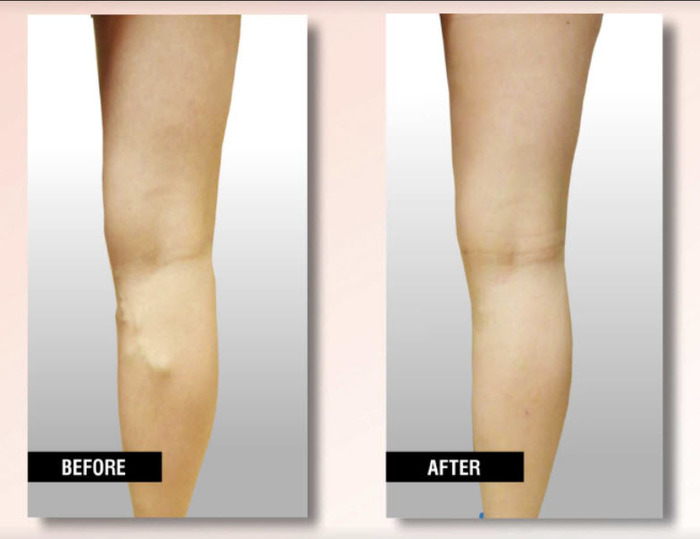 Profile Photos of USA Vein Clinics 2444 86th St, Ste A - Photo 3 of 6