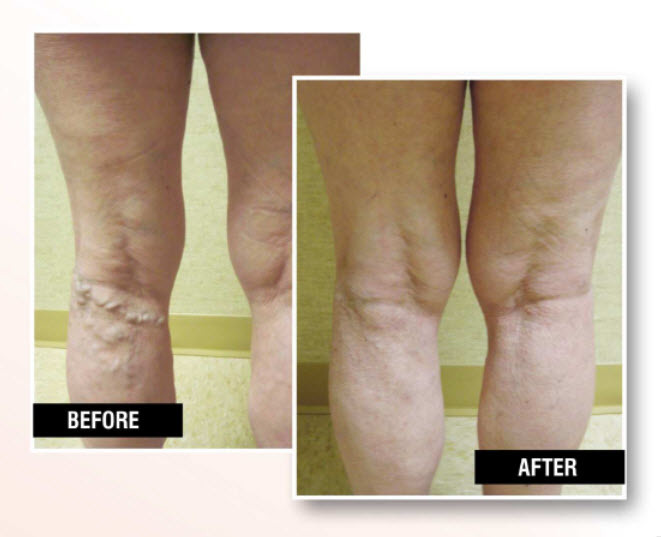 Profile Photos of USA Vein Clinics 2444 86th St, Ste A - Photo 2 of 6
