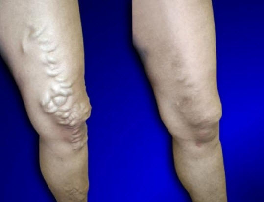 Profile Photos of USA Vein Clinics 2444 86th St, Ste A - Photo 5 of 6
